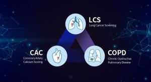 코어라인소프트, 美 FDA 'AI 기반 폐암 검진 솔루션' 승인 완료
